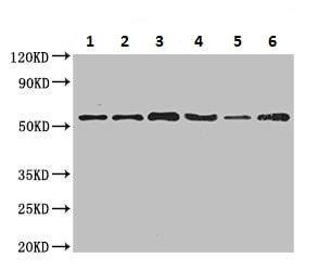 Western blot - Anti-SLC16A9 antibody (ab223057)