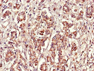 Immunohistochemistry (Formalin/PFA-fixed paraffin-embedded sections) - Anti-FBXL22 antibody (ab223059)