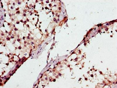 Immunohistochemistry (Formalin/PFA-fixed paraffin-embedded sections) - Anti-ML-1 antibody (ab223066)