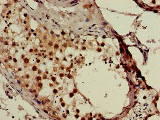 Immunohistochemistry (Formalin/PFA-fixed paraffin-embedded sections) - Anti-SMN/Gemin 1 antibody (ab223068)