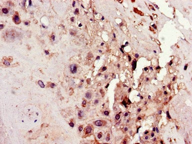 Immunohistochemistry (Formalin/PFA-fixed paraffin-embedded sections) - Anti-C4orf26 antibody (ab223071)