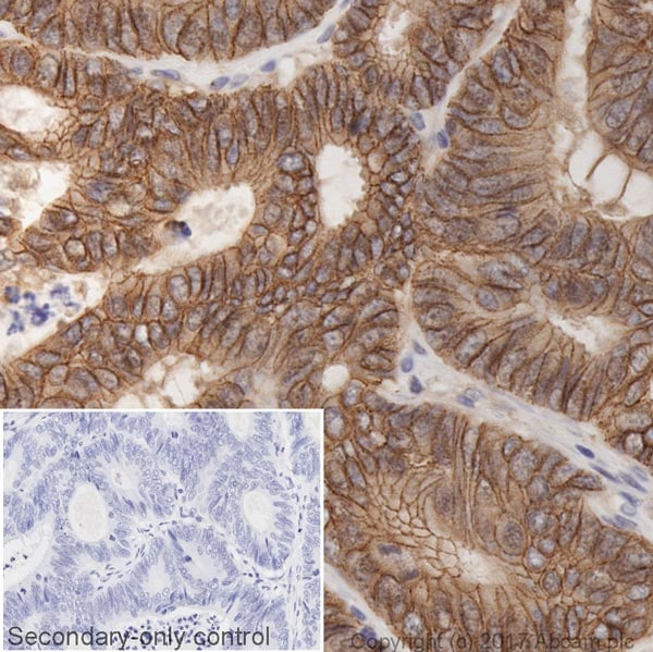Immunohistochemistry (Formalin/PFA-fixed paraffin-embedded sections) - Anti-beta Catenin antibody [IGX4794R-3] (ab223075)