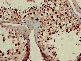 Immunohistochemistry (Formalin/PFA-fixed paraffin-embedded sections) - Anti-RPL23A antibody (ab223089)