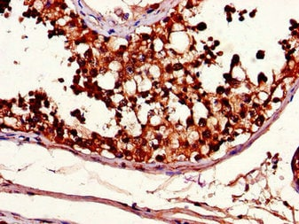 Immunohistochemistry (Formalin/PFA-fixed paraffin-embedded sections) - Anti-METTL14 antibody (ab223090)