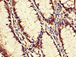 Immunohistochemistry (Formalin/PFA-fixed paraffin-embedded sections) - Anti-PANK2 antibody (ab223091)