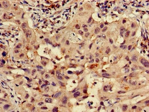 Immunohistochemistry (Formalin/PFA-fixed paraffin-embedded sections) - Anti-RPS15 antibody (ab223092)