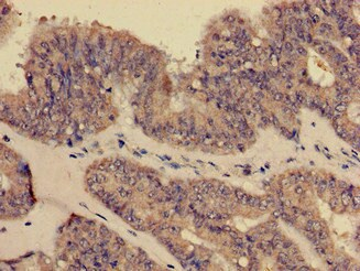 Immunohistochemistry (Formalin/PFA-fixed paraffin-embedded sections) - Anti-CD35 antibody (ab223093)