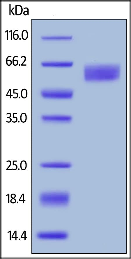SDS-PAGE - Recombinant Human TGF beta Receptor II protein (Fc Chimera) (ab223104)