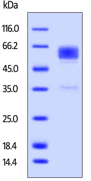 SDS-PAGE - Recombinant cynomolgus monkey TIM 3 protein (Fc Chimera Active) (ab223109)