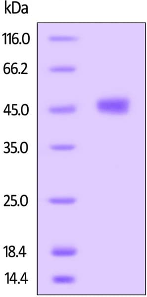 SDS-PAGE - Recombinant human TIGIT protein (Fc Chimera Active) (ab223110)