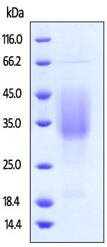 SDS-PAGE - Recombinant human TIM 3 protein (ab223111)