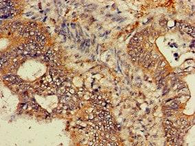 Immunohistochemistry (Formalin/PFA-fixed paraffin-embedded sections) - Anti-GNB4 antibody (ab223113)