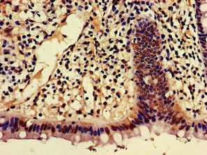 Immunohistochemistry (Formalin/PFA-fixed paraffin-embedded sections) - Anti-AJAP1 antibody (ab223117)