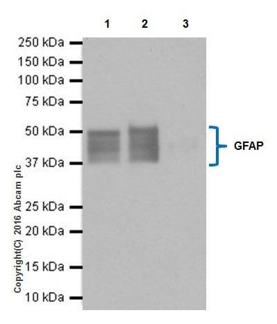 Immunoprecipitation - Anti-GFAP antibody [EPR19996] - BSA and Azide free (ab223127)