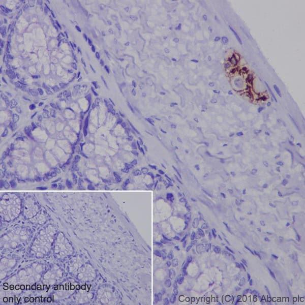 免疫组织化学(福尔马林/PFA固定石蜡包埋切片)-抗GFAP抗体[EPR19996]-BSA和叠氮(ab223127)