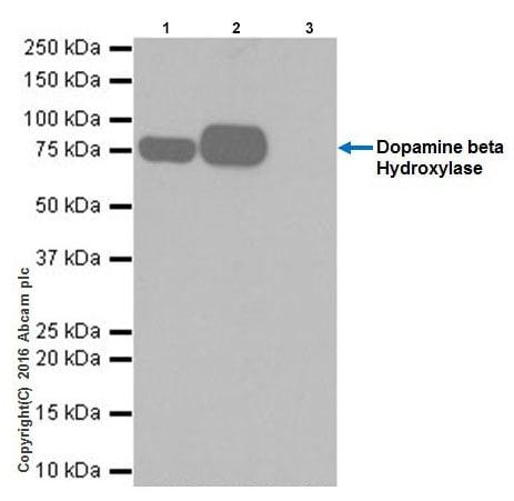 Immunoprecipitation - Anti-Dopamine beta Hydroxylase antibody [EPR20385] - BSA and Azide free (ab223130)