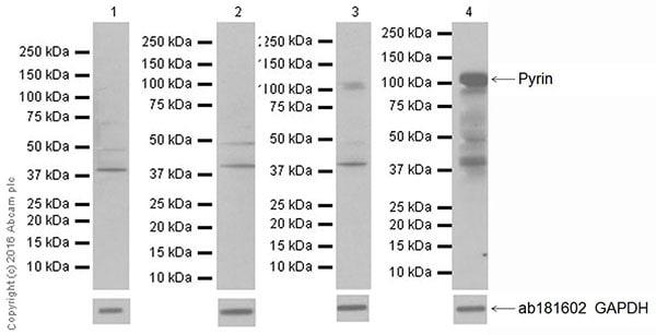 Western blot - Anti-Pyrin antibody [EPR18675] - BSA and Azide free (ab223132)