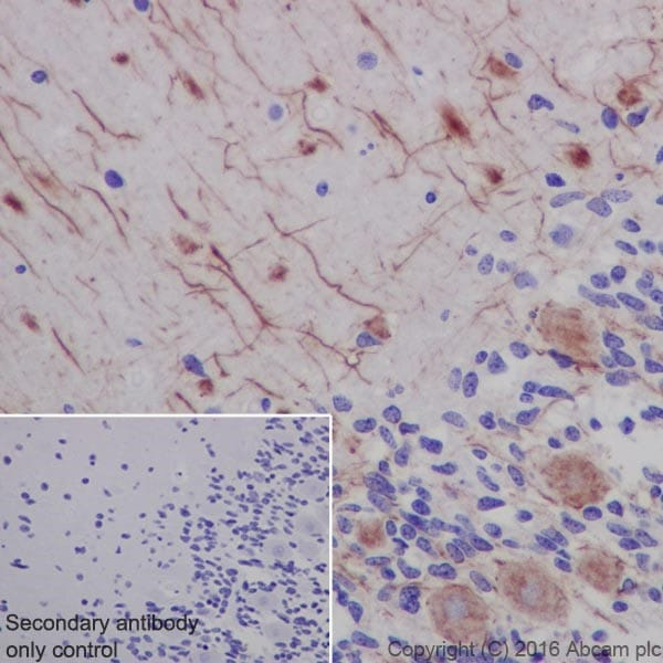 Immunohistochemistry (Formalin/PFA-fixed paraffin-embedded sections) - Anti-Neurofilament heavy polypeptide antibody [EPR20020] - BSA and Azide free (ab223139)