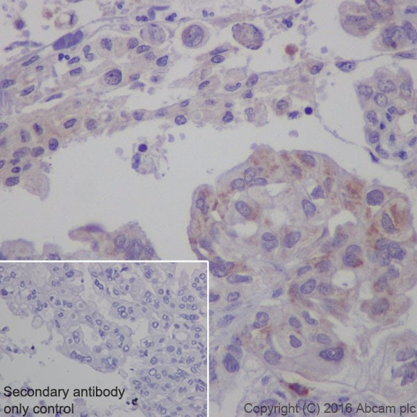 Immunohistochemistry (Formalin/PFA-fixed paraffin-embedded sections) - Anti-Cathepsin K antibody [EPR19992] - BSA and Azide free (ab223140)