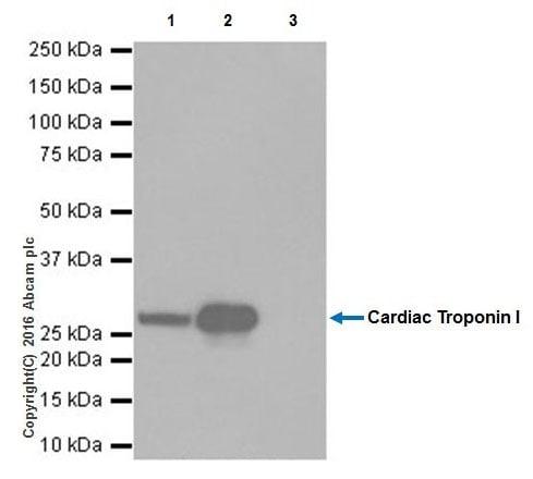 Immunoprecipitation - Anti-Cardiac Troponin I antibody [EPR20307] - BSA and Azide free (ab223149)