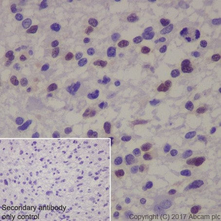 Immunohistochemistry (Formalin/PFA-fixed paraffin-embedded sections) - Anti-MAGE3 antibody [EPR19065] (ab223162)