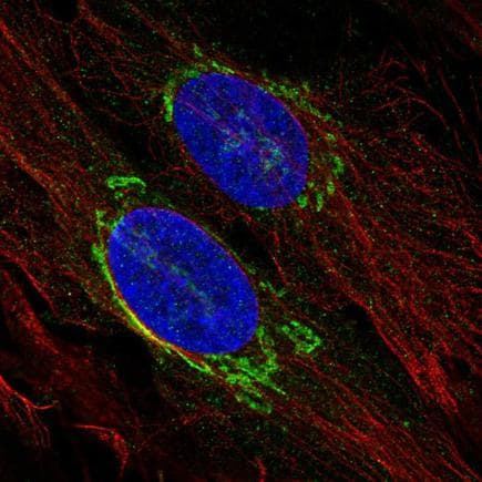 Immunocytochemistry/ Immunofluorescence - Anti-p26 antibody (ab223175)