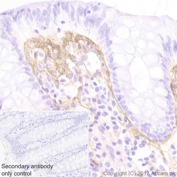 Immunohistochemistry (Formalin/PFA-fixed paraffin-embedded sections) - Anti-Periostin antibody [EPR19934] - BSA and Azide free (ab223194)