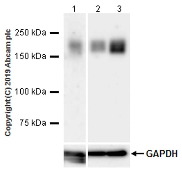 Western blot - Anti-LRP5 antibody [EPR22477-218] (ab223203)