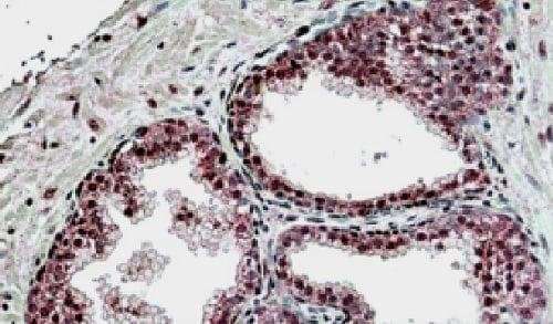 Immunohistochemistry (Formalin/PFA-fixed paraffin-embedded sections) - Anti-SUFU antibody - N-terminal (ab223215)