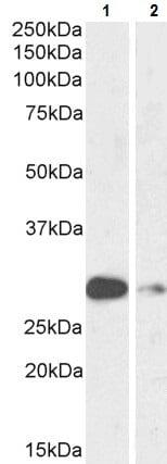 Western blot - Anti-MASH1/Achaete-scute homolog 1 antibody (ab223229)