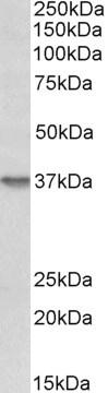 Western blot - Anti-Syndecan-1 antibody (ab223232)