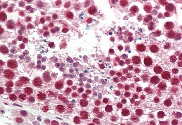 Immunohistochemistry (Formalin/PFA-fixed paraffin-embedded sections) - Anti-hnRNP A2B1 antibody (ab223237)