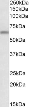 Western blot - Anti-ATG16L1 antibody (ab223238)