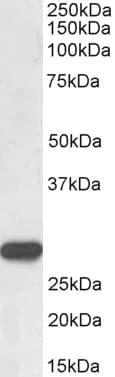Western blot - Anti-PR3 antibody (ab223244)