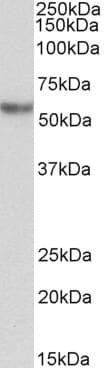 Western blot - Anti-alpha 1 Antitrypsin antibody (ab223263)