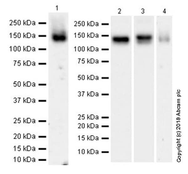 Western blot - Anti-ENPP1/PC1 antibody [EPR22262-22] (ab223268)