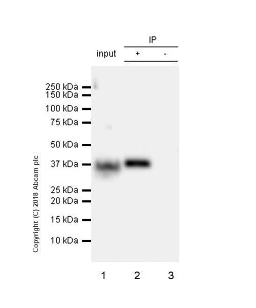 Immunoprecipitation - Anti-ASPA antibody [EPR22072] (ab223269)