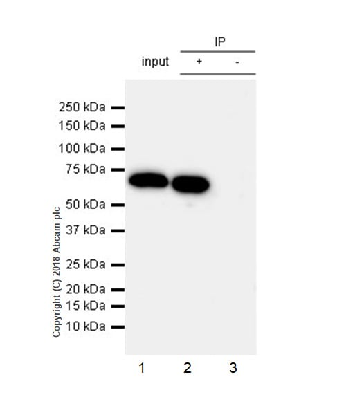 Immunoprecipitation - Anti-68kDa Neurofilament/NF-L antibody [EPR22035-112] (ab223343)