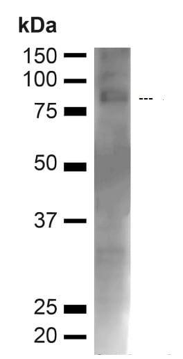 Western blot - Anti-Choline Acetyltransferase antibody (ab223346)