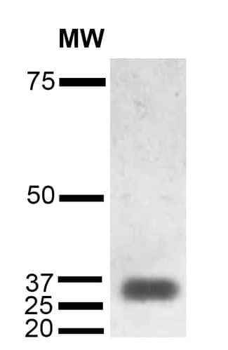 Western blot - Anti-CD74 antibody [1B8] (ab223350)