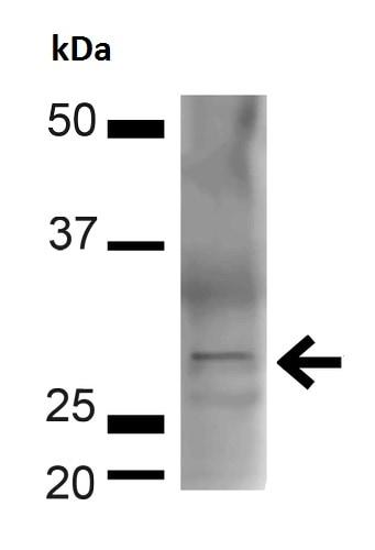 Western blot - Anti-BDNF antibody (ab223354)
