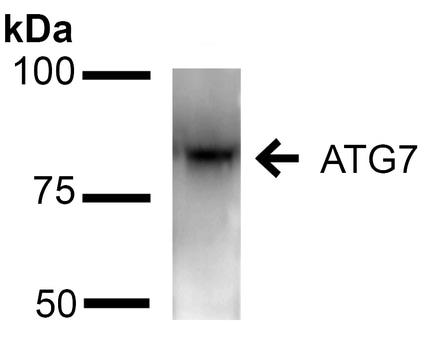 Western blot - Anti-ATG7 antibody (ab223365)
