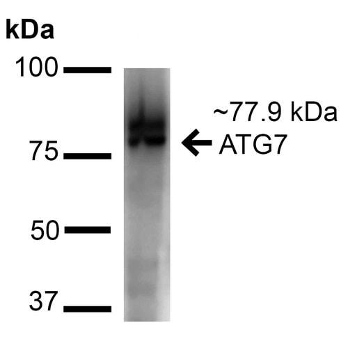 Western blot - Anti-ATG7 antibody (ab223380)