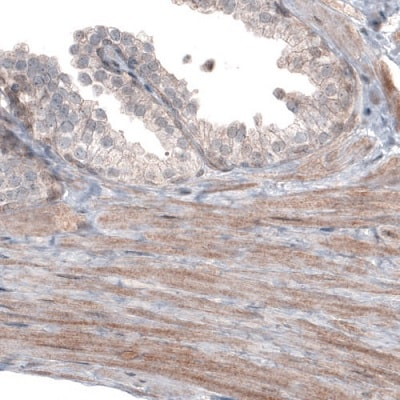Immunohistochemistry (Formalin/PFA-fixed paraffin-embedded sections) - Anti-PGM1 antibody [CL3299] (ab223469)