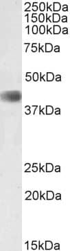Western blot - Anti-Cdk9 antibody (ab223471)