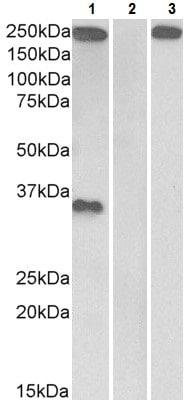 Western blot - Anti-Thrombospondin antibody - N-terminal (ab223472)