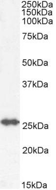 Western blot - Anti-GSTM4 antibody (ab223480)