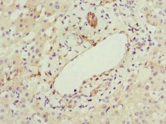 Immunohistochemistry (Formalin/PFA-fixed paraffin-embedded sections) - Anti-HBXIP antibody (ab223487)