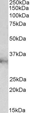 Western blot - Anti-CLIC1 antibody (ab223494)
