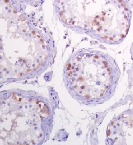 Immunohistochemistry (Formalin/PFA-fixed paraffin-embedded sections) - Anti-CTAG1B antibody [SP349] (ab223498)